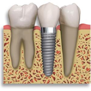 fogászat fogpótlás fogorvos