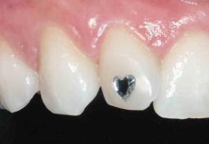 fogékszer 1
