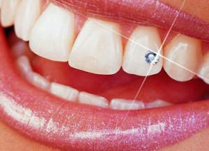 fogékszer fogorvos