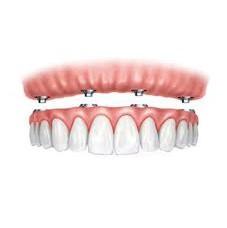 fogorvos rögzített fogpótlás