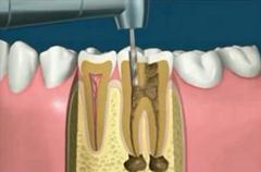 gyökérkezelés fogorvos rendelő