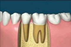 fogfájás fogászati kezelés gyökérkezelés