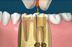 Dr. Horváth Róbert fogorvos gyökérkezelés