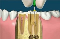 fogászat fogorvos gyökérkezelés