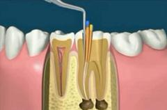 fogmegtartó kezelés fogorvos gyökérkezelés
