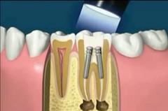 fogmegtartás fogorvos