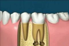 fogmegtartó kezelés fogorvos